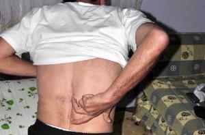 болки в гърба лечение
