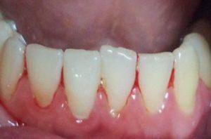 заздравяване на венците